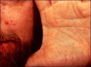 Síndrome de nevo de célula basal en cara y mano