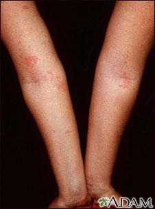 Dermatitis atópica de los brazos