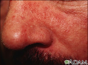 Vista de cerca de dermatitis seborreica