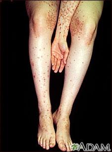 Dermatitis herpetiforme en el brazo y las piernas
