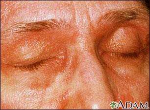 Dermatomiositis, párpados heliotropes