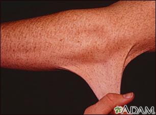 Síndrome de Ehlers-Danlos o hiperelasticidad de la piel