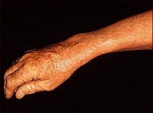 Léntigo solar con eritema en el brazo