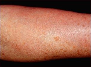 Mastocitosis cutánea difusa