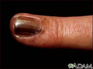 Cáncer de piel o melanoma en la uña del dedo de la mano