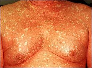 Pitiriasis rubra pilaris en el pecho