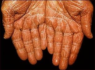 Pitiriasis rubra pilaris en las palmas de la mano