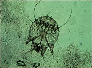 Microfotografía del ácaro de la escabiosis