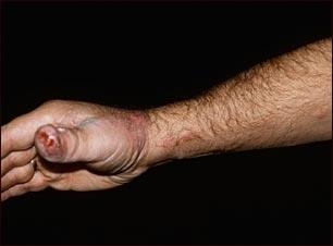 Esporotricosis en la mano y el brazo