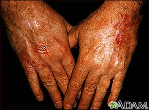 Cáncer de piel, escamocelular en las manos