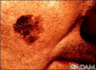 Cáncer de piel: primer plano del melanoma léntigo maligno