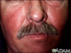 Salpullido facial por lupus eritematoso sistémico