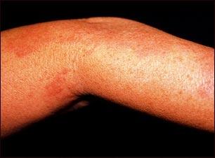 Herpes zoster (culebrilla) en el brazo