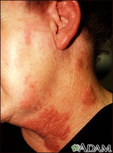 Shingles On Neck