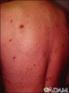 Sarcoma de Kaposi en la espalda