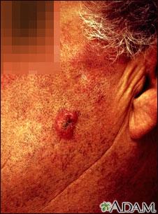 Carcinoma escamocelular invasivo