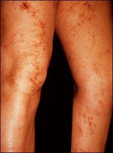 Livedo reticularis en las piernas