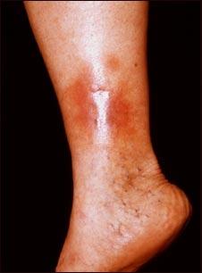 Dermatitis por estasis en la pierna