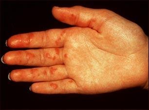 Vasculitis en la palma de la mano