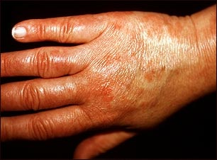 Vasculitis urticarial en la mano
