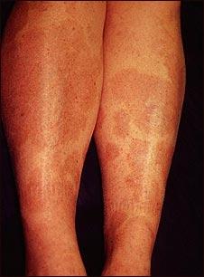 Granuloma anular en las piernas
