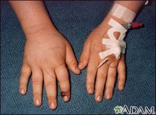 Mordida de serpiente en un dedo