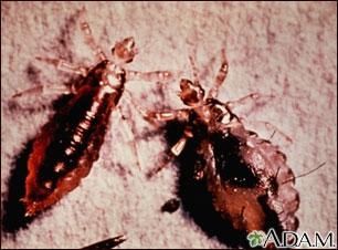 Cuerpo y heces del piojo de cuerpo (pediculus humanus)