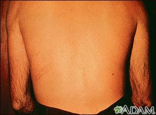 Estrongiloidiasis, erupción progresiva en la espalda