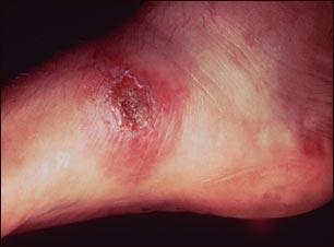 Leishmania panamensis en el pie