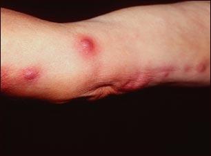 Esporotricosis en el brazo