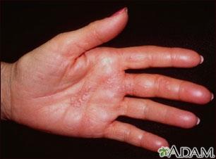 Herpes zoster (culebrilla) en la mano