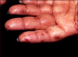 Dermatitis herpetiforme en la mano