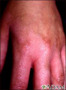 Fitofotodermatitis de la mano