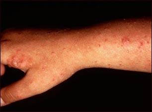 Erupción leve y poliforme del brazo