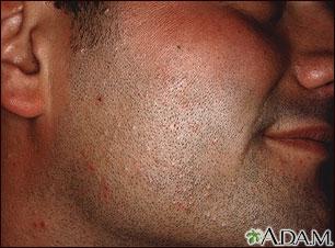 Molusco contagioso en la cara