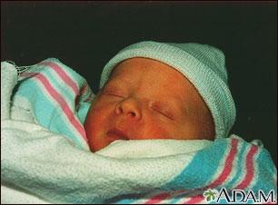 Bebé ictérico