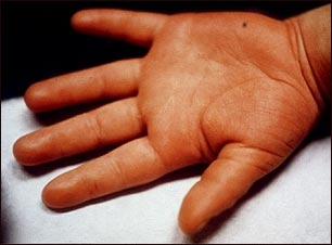 Enfermedad de Kawasaki; edema de la mano