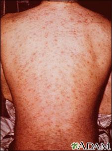 Erupción por drogas en la espalda