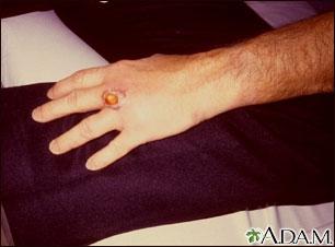 Picadura de una araña reclusa parda en la mano