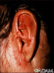 Tiña corporal en el oído
