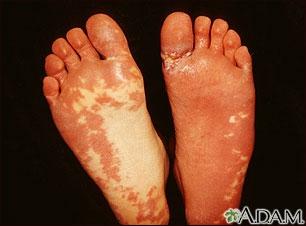 Síndrome de Sturge-Weber; plantas de los pies