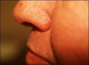 Carcinoma de célula basal en la nariz