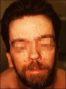 Síndrome de nevo de células basales- cara