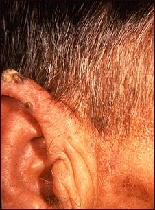 Queratosis actínica en el oído