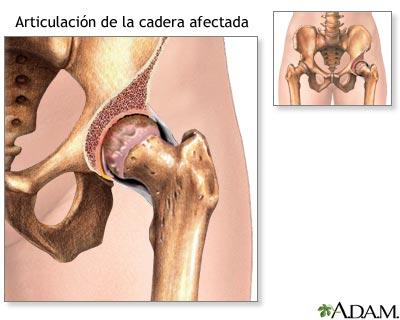 Cadera afectada