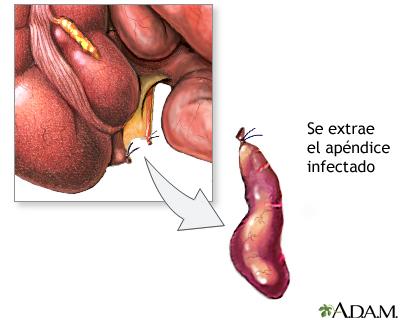 Apendicectomía - Serie—Procedimiento: MedlinePlus enciclopedia médica