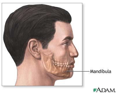 Agrandamiento del mentón (genioplastia) - Serie—Anatomía normal ...
