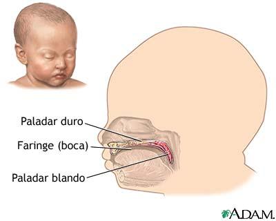 Fisura labial (labio leporino) y fisura palatina