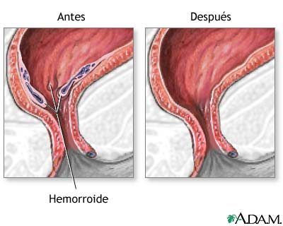 Cirugía de... Thrombosed Hemorrhoids