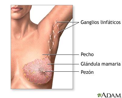 Mastectomía - Serie—Anatomía normal: MedlinePlus enciclopedia médica